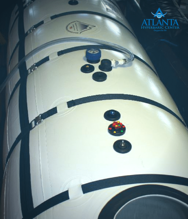 40 Grand Dive Used Hyperbaric Chamber
